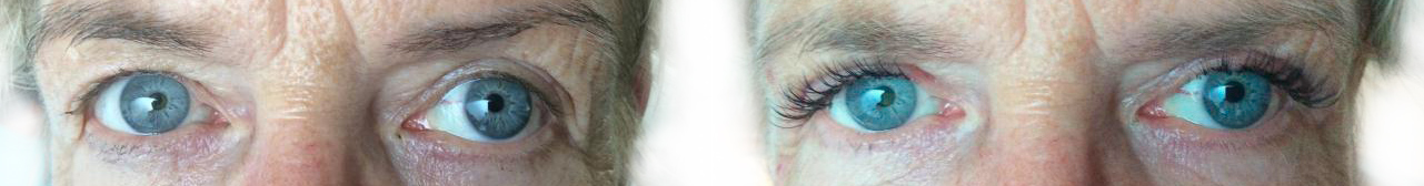 ooglidcorrectie voor en na