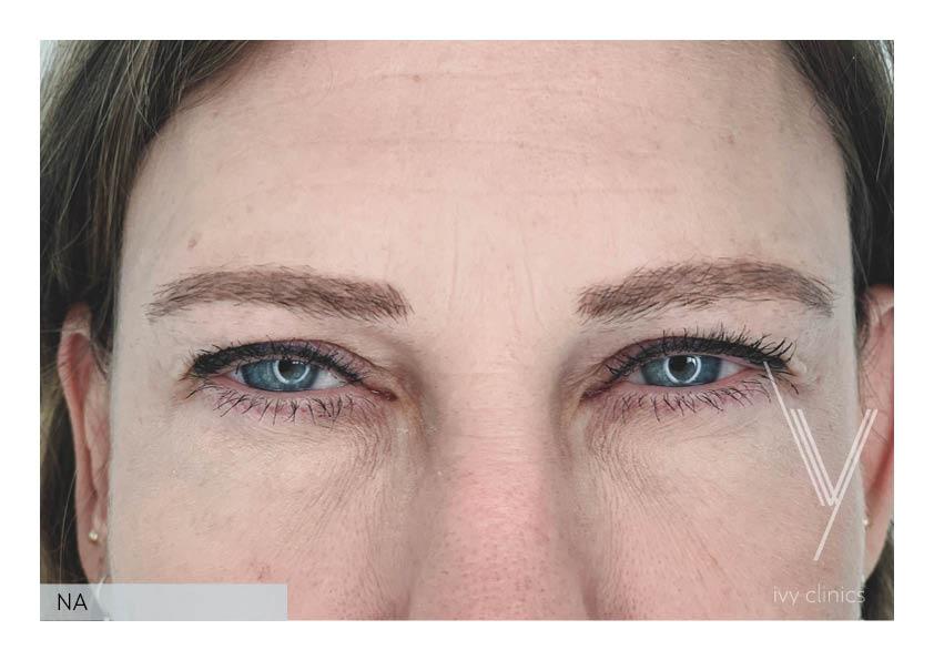 botox behandeling vrouw ogen voorfoto