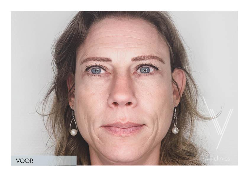 botox behandeling vrouw voorkant voorfoto