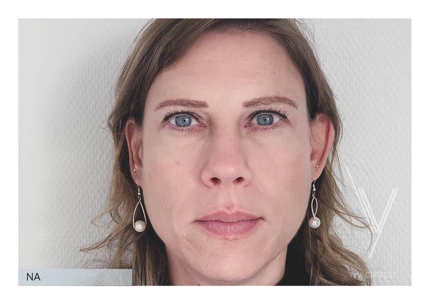 Botox behandeling voorkant nafoto.