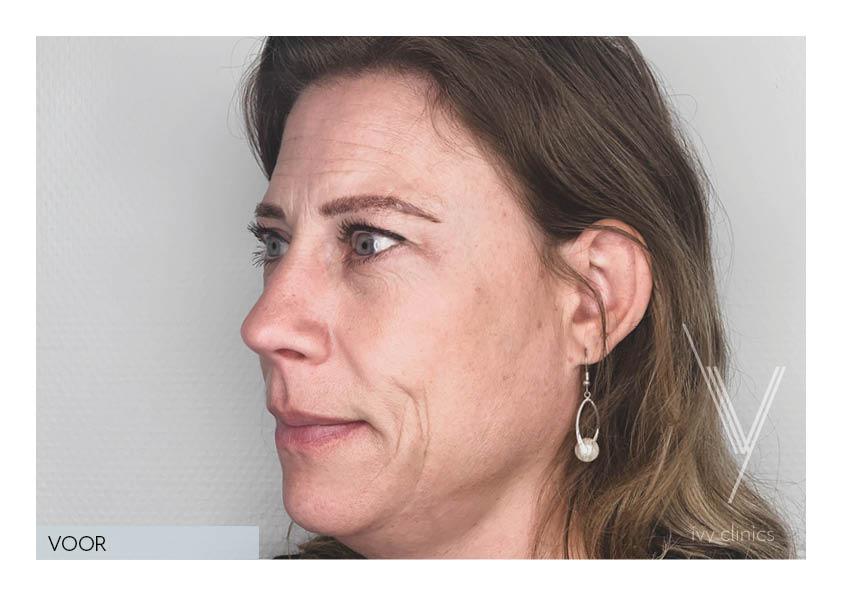 botox behandeling vrouw zijkant voorfoto