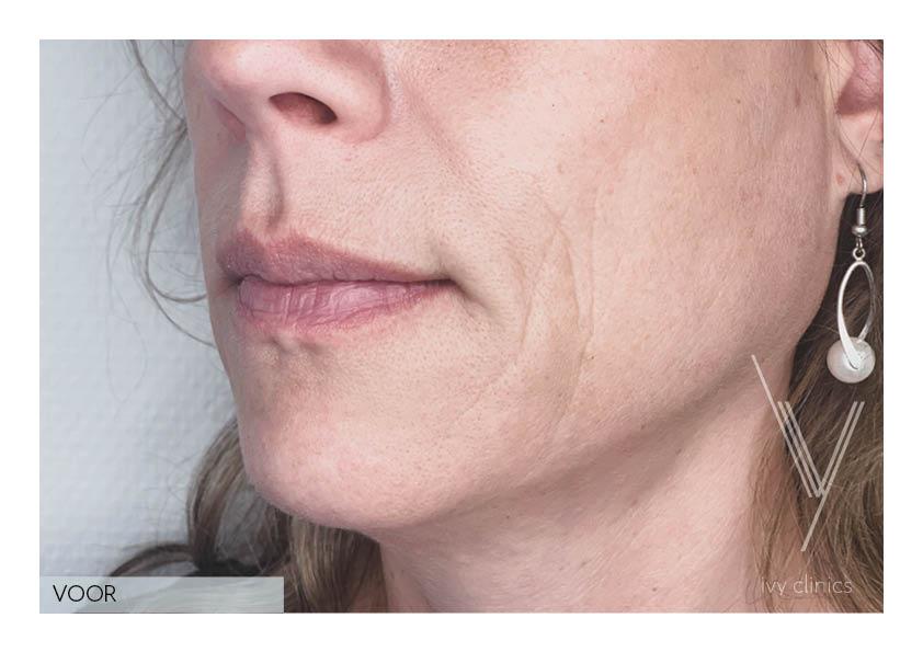 botox behandeling vrouw kaaklijn voorfoto