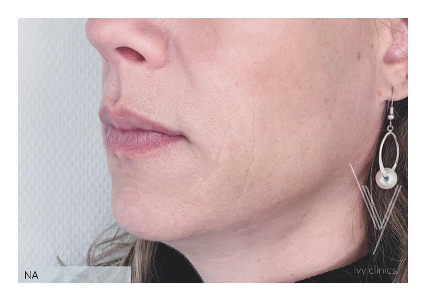 botox behandeling vrouw kaaklijn nafoto