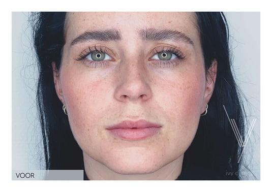 Lippen opvullen voor voorkant - close up