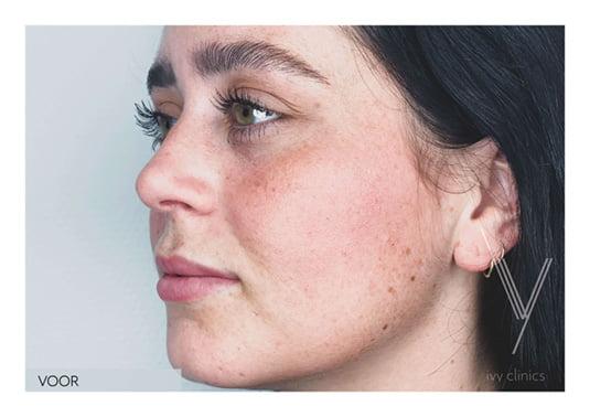 Lippen opvullen voor - zijkant