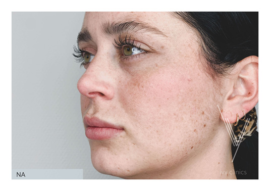 Lippen opvullen na - zijkant