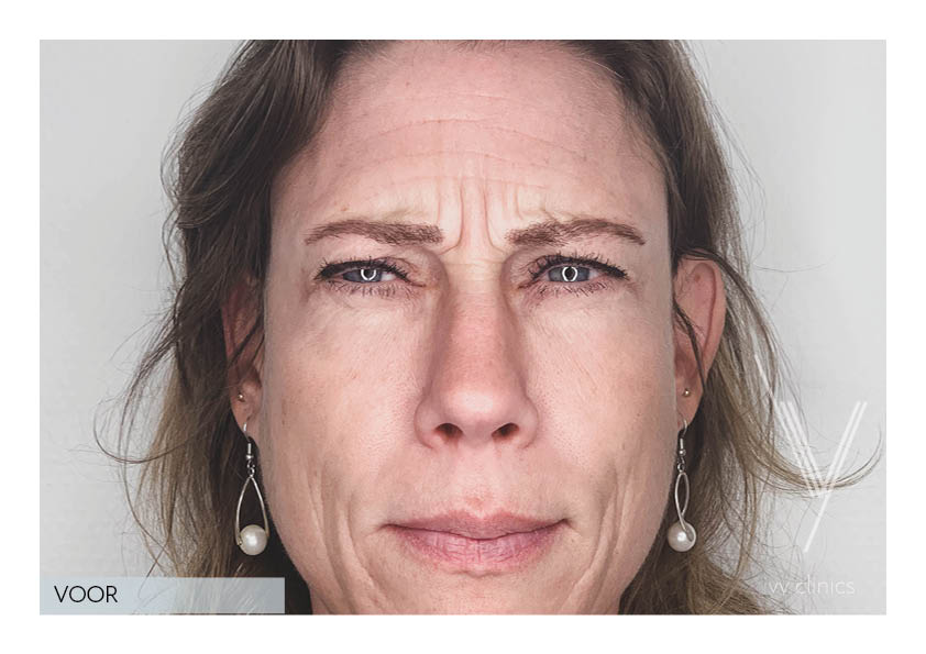 Filler behandeling voorkant voorfoto.