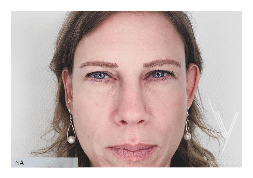 Filler behandeling voorkant nafoto.