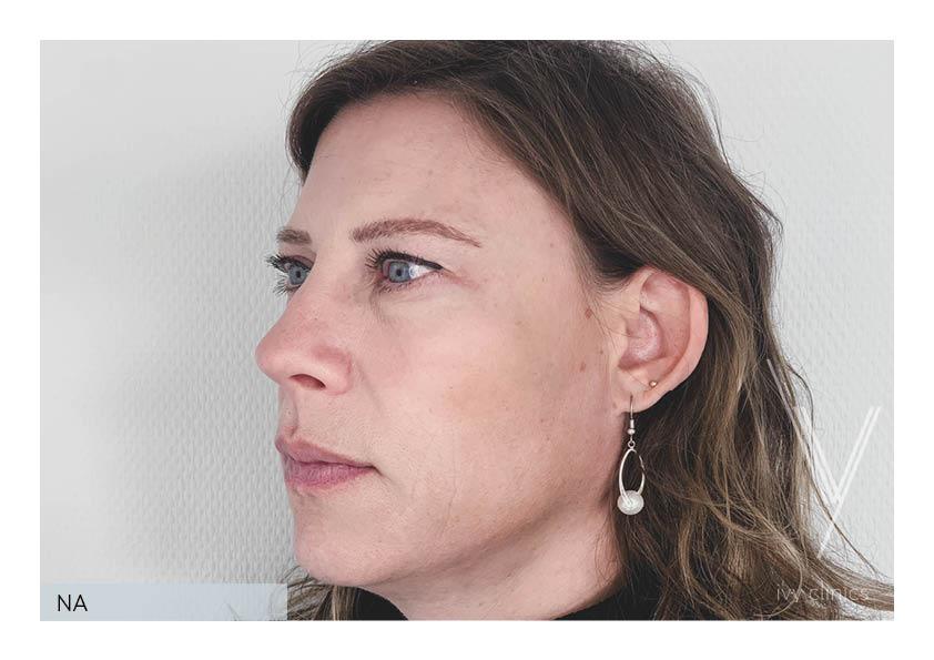 Filler behandeling zijkant nafoto.