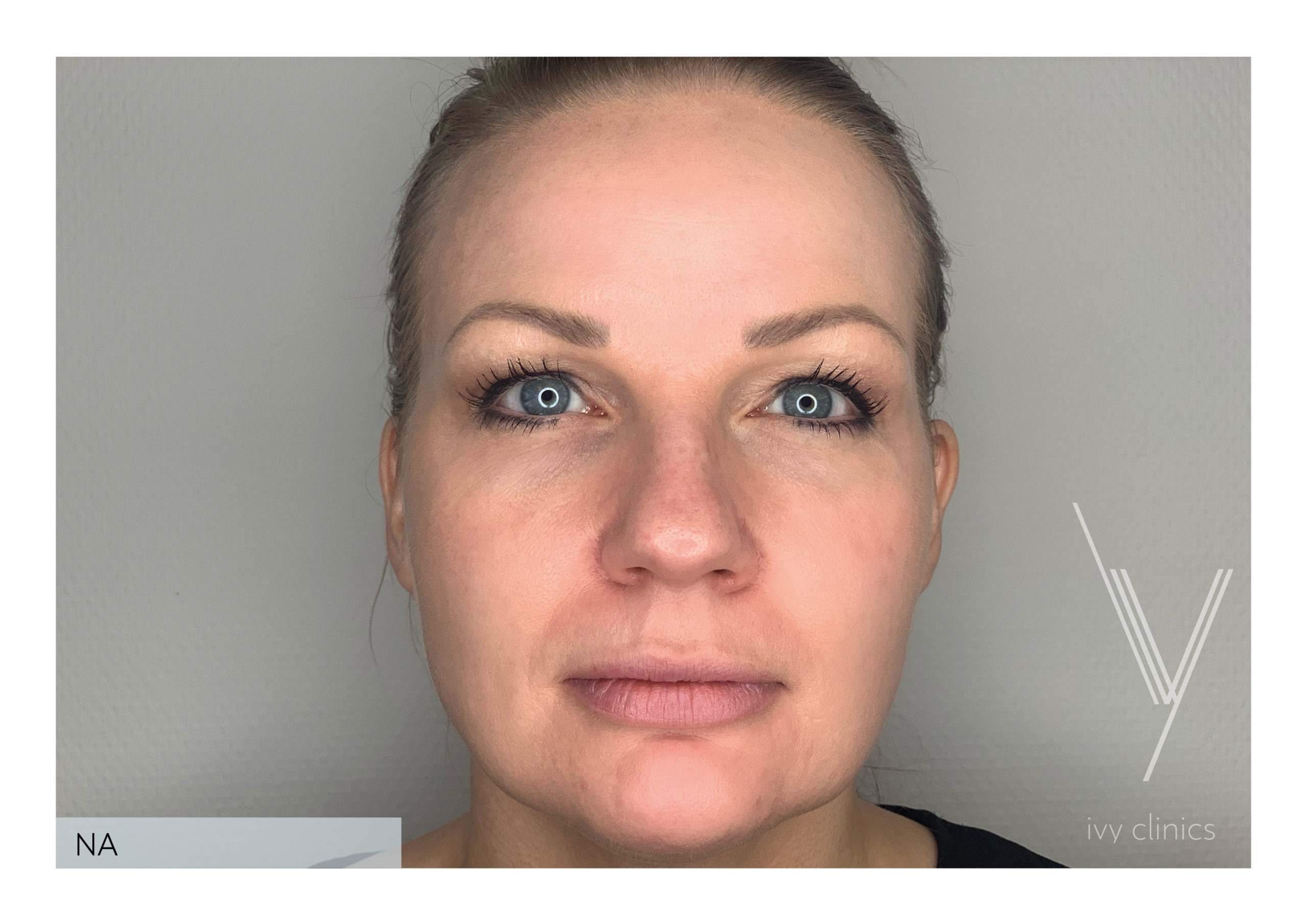 Me-Line behandeling voorkant nafoto