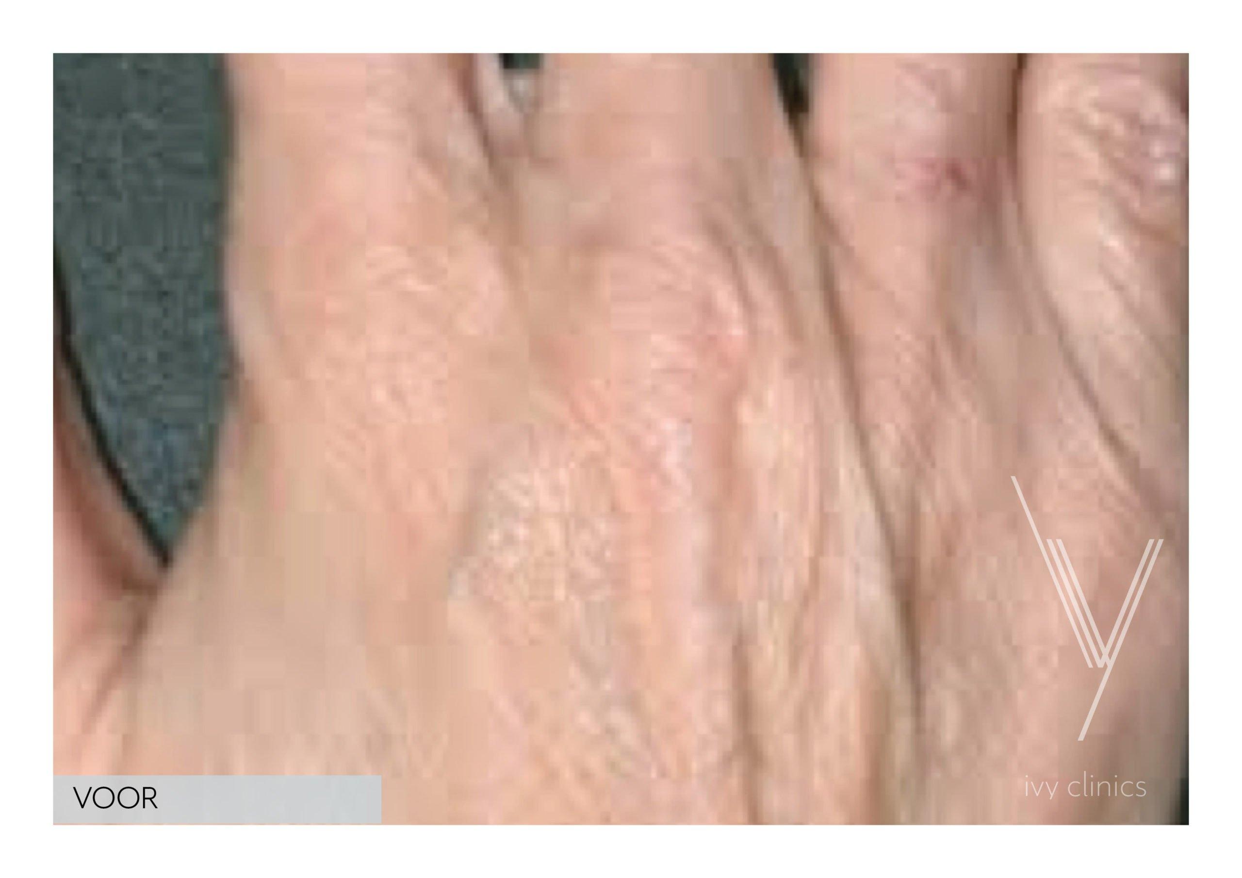 Fillers handen voorfoto