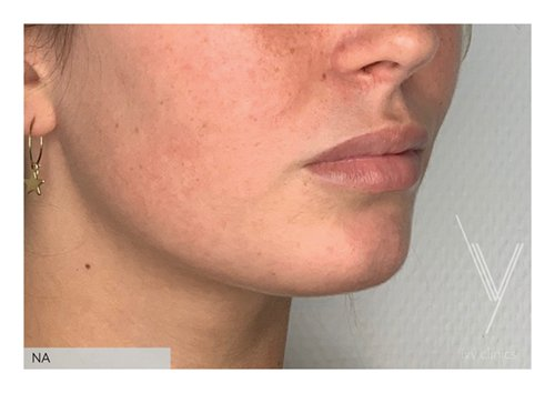 Fillers lippen + kin schuin resultaat