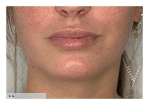 Fillers lippen + kin voorkant resultaat