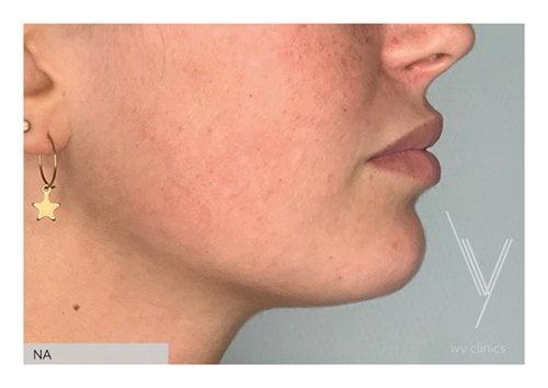 Fillers lippen + kin zijkant resultaat