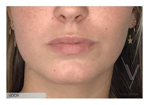 Fillers lippen + kin voorkant