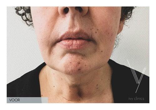 Hals liposuctie voorkant resultaat