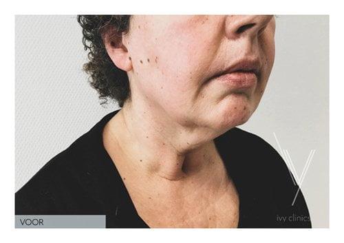 Hals liposuctie zijkant