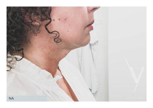 Hals liposuctie zijkant resultaat