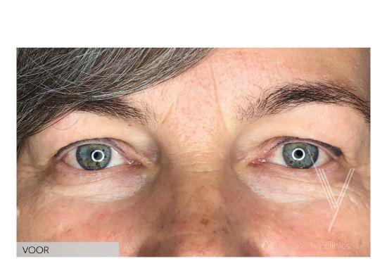 Bovenooglidcorrectie vrouw close up voor